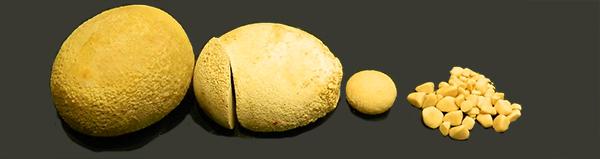 Bladder-Stones-2a