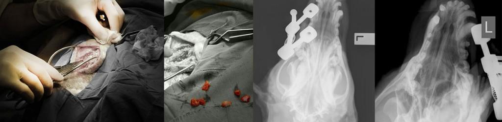 Nasal Tumour Surgery