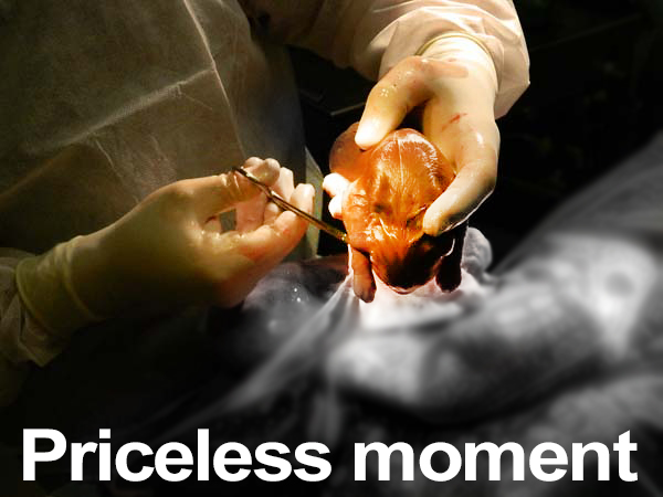 Caesarean Section Priceless Moment