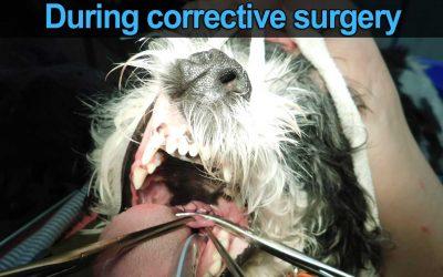 Soft Palate Surgery